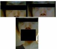 黒クマ?治療方法、レーザー?フォトフェイシャル? 画像を添付しました。これは黒クマですよね・・・ ここ1年ですごく目立ってきました゚・。(。/□\。)  改善方法は、脱脂術しかないでしょうか? ヒアルロン酸注...