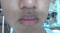 たらこ唇で困ってます。対処法をお願いします(T_T)