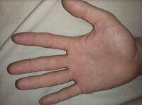 右手の手相にマスカケ線があります。 どんな意味か教えてください。 マスカケ線については、昔ほんの少しですが繋がりが切れれたり繋がったりしてました。 黒子に関しては一昨年できたものです。 左手の画像も...