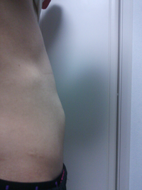 少々下品な画像すいません。  この膨らんでる部分は胃ですか?