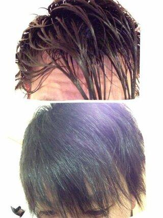 スカスカ 回復 前髪