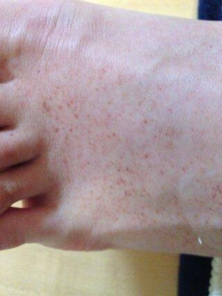 足 に 赤い 斑点 痒く ない