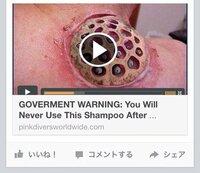 Facebookで話題の画像 身体に寄生しているかの様なこの画像。元は動画なのでしょうか? 今Facebookで話題のこの画像がとても気になります。 詳細をご存知の方いらっしゃいませんか(>_< )?
