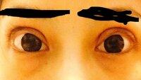 全切開をして、約一ヶ月がたちました。約一ヶ月たち、大きな腫れは引きましたが特に右目にまつ毛の外反があり、目尻側の粘膜が丸見え、(粘膜は両目見えています)そして食い込みも強く、そもそ も開いている目の形が明らかに変です。三角形というか、蒙古襞のせいなのか目頭側が突っ張っていて綺麗なラインを描いていません。このままだったら…とすごく後悔しています。元々小切開を数年前にして、二重だったのですが、食...