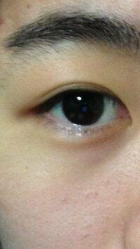 伸びた瞼について 18歳の男性です 片目が一重瞼なので絆創膏などでいじっていました。 写真を見る限りでは瞼は伸びているんでしょうか??  また、やはり改善するにしても美容整形しか手はないでしょうか?
