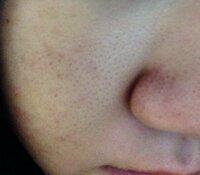 閲覧注意‼︎! 私はすごく毛深くて、顔の産毛まで濃いです。 特に頬の毛は、シェーバーで剃ってもまだ目立つほどです。 どうすれば綺麗になりますか?  (中傷はやめてください)
