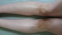 この膝の黒ずみはもう直りませんか?(汚くてすみません・・) ストッキングでも隠せなくてトレンカやタイツを履いてますが夏はやっぱり暑苦しくて(汗)