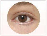 目尻切開をして片目が切り過ぎで画像のように(実際は画像以上に)赤い部分が露出してしまいました。 目頭切開の修正は聞いたことありますが、目尻切開で修正なんてできるのでしょうか? メイ クでごまかすならどうしたらいいですかね?