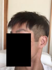 あまり髪が伸びていないまま無理にツーブロックにしたためカッパみたいになり髪が浮き上がった感じになっています。しかも、髪質が前向きに生えストレートすぎるためスタイリング方法がわかりま せん。 耳のライ...
