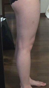 前ももの張り出しと、内腿を引き締めたいです。 恐らく反り腰だと思い、色々エクササイズやストレッチなどを行っていますが中々効果は表れません。 アドバイスお願いします。