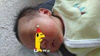 ☆新生児の乳児湿疹?について☆   こんにちは。閲覧ありがとうございます。   もうすぐ生後1ヶ月の男の子(完母)を育てています。 ここ一週間で、頬を中心に顔全体に赤い湿疹が出てきまし た。(画像参照) ...
