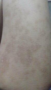 この傷跡、アットノンで治りますか? 二年前ぐらいの掻き傷です