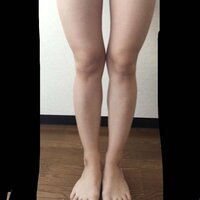 脚の形が悪いです。これってX脚ですか? 太ももが曲がっているのと全体的に外側に肉が付いているのが気になるのですがどうすればシュッとした綺麗な脚になれますか?