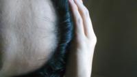 高校生です。 前髪が最近薄いような気がします。 お風呂での抜け毛も短い毛が多いです。   頭皮の毛の間隔もすかすかです。  AGAの病院に行った方がいいですかね?