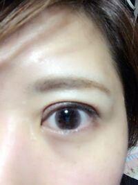全切開して1ヶ月とちょっと。 片目だけしましたが、 目を開けた時の食い込み きつくないですか?  ご意見ください。