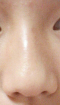 鼻がコンプレックスです… 少しでも鼻筋を通して小鼻を引き締められる方法はありますか? 教えてください!