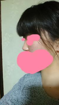 これは鼻低いですよね とてもは低いと思います 整形した方がいいですか?