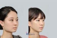 エラのない顔がコンプレックスです。  写真の右側のようなエラです。シェーディングをしないと首とエラの境目がぼやっとしていて、本当に嫌です。 顔が卵型なのもあり、エラもないし本当に卵 みたいな楕円なんです。気になって髪の毛をアップヘアにできません…。  理想は左側の写真のようにくっきりしているエラなのですが、そのようなエラの形にするにはプロテーゼでしょうか? ヒアルロン酸・レディエ...