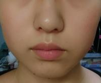 最近気づいたんですけど鼻が左右対称じゃないんです。顔は左右対称ではないって知っているんですけどやっぱりこの角度はな、、と気になるんです。なんとかなりませんかね?
