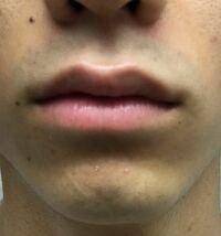 男子高校生です。朝髭を剃ったあとなんですが結構青いですよね?いまは毎朝剃刀で髭剃りして後にグロウストッパーexつけてるのですが、この青いの薄くならないですかね?