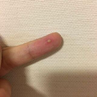 指の腹に白い出来物ができました、、 - 押すと痛くて、押さないと痛く ...