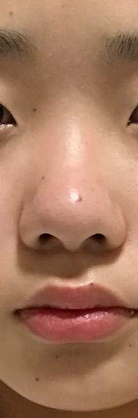 肌汚くてすみません、、 この鼻って鼻筋通ってませんよね?団子鼻ですよね?モデルさんのような小さくて鼻筋通った鼻にするにはどうしてらいいですか?