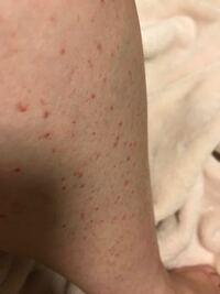 足 赤い 斑点