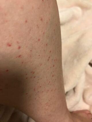 かゆく 太もも ない 斑点 赤い