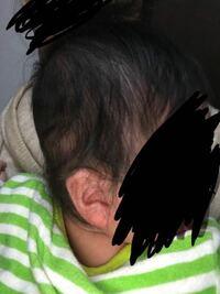 今、生後5ヶ月の赤ちゃんです。 これは、絶壁頭でしょうか。 寝返りもそんなしなくてほぼ寝ながら物持って遊んでばかりです。