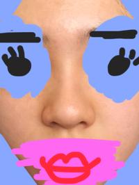鼻を小さくする方法教えてください!  小鼻が潰れていて鼻の穴が大きいです。鼻の三角の部分の下(鼻の穴の下)の幅が広くて致命的です。 あと鼻の肉も分厚いです。  マッサージと鼻運動を1 ヶ月続けています...