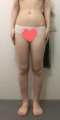 太ってますか? 正直にお願いしますm(_ _)m  164センチ、51.5キロ、体脂肪22%です。