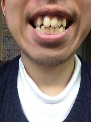 芸人 歯並び 悪い