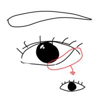 画像の様に、下まぶたの目尻を下げたいのですが、マッサージなど、自力でやる方法はありますか? それと、整形するとしたらどんな整形をすれば良いですか?