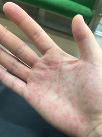手の甲 赤い 点 皮膚の赤い斑点は病気?かゆみがあるなしでの7つの原因と対処法!