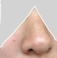 鼻筋から眉間、鼻の横辺りの毛穴が汚いです。  角柱というよりかは毛穴が凸しているように見えます…  汚い+ピントも上手くあっておらずすみません。  また、鼻周りに2つくらい、ニキビと はまた少し違うような赤い出来物があります。  長い間ニキビと同じケアしてますが全然治りません。  どのようなケアをしたら治りますでしょうか   どちらかでも構いませんのでご意見頂けたら幸いです