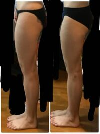 短期間の筋トレで太ることはありますか? 女性の筋トレに関して質問です。    代謝アップのために2週間前からタバタ式の筋トレをしています。  典型的下半身太りで、太もも53cm、ふくらはぎがかなり太めで3...