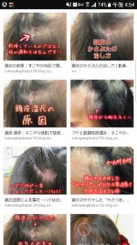 メサデルム ローション 頭皮 メサデルムローション0.1% -