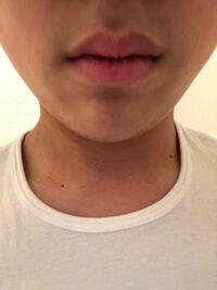 唇がぼてっとしてる?ちいさい?んですが、もっと横に細く伸ばしたいのですが整形は必要でしょうか? なにか効果的なマッサージはありませんか?