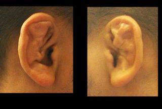 水っぽい 耳垢
