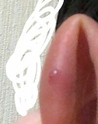 観覧注意 ⚡ 肉芽の写真あり 1ヶ月ちょっと前にアンテナヘリックスに穴を開けました。開けたばかりでしたがバイトがあったため3日でファーストピアスをとり透ピに変えました。ホールが安定してないのに外したりとったりの繰り返しでした。9月に入ってからは樹脂ピアスをずっとしていました。今日お風呂に入っている時に髪の毛がキャッチに引っかかりキャッチがとれました。ピアスをとってみると肉芽のようなものができ...