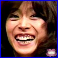 中森明菜の歯は胃酸でボロボロ、総入れ歯ですか?