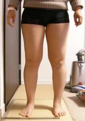 脂肪溶解注射を受けた事のある方に質問です。  足だけがかなり太く、写真くらいあるのですが、お休みが取れないので脂肪吸引の施術を受けられません。 脂肪溶解注射でこれを普通の人くらいの 細さにしようとしたら、どのくらいの費用と時間が必要でしょうか……? カウンセリングに行きましたが、はっきりどのくらい時間が掛かるかなどは言えないとの事でした。(クレーム避けですかね)  湘南美容のMI...