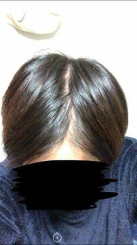 髪の毛 分け目 薄毛 ハゲ 今日髪の毛を分けてみたら、分け目が薄く感じたのですがこれは髪質が細いからですか??それとも薄くなってきているんでしょうか??