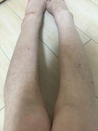 色素沈着、毛穴がひどいこんな足でも、まだ救いようはありますか?本当に悩んでます。自分の足を見る度に泣きそうになります。泣