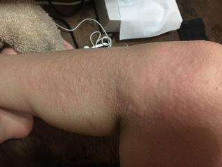風呂上り蕁麻疹