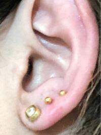ピアスを耳タブに三連で開けたのですが1番外側の軟骨に近い部分が埋まりそうな感じがします。 ポストが耳裏の方に長く出ていて、指で裏からピアスを押すと表面の方にポストが出てくるのですが、離すとすぐ埋まってしまいます。 これはもう取った方がいいでしょうか?