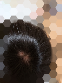 男子高校生です。最近円形脱毛症ではないかと思い始めました。これは円形脱毛症ですかね? 仮に円形脱毛症だとしたらどう対処すればいいでしょうか。教えてくだい。