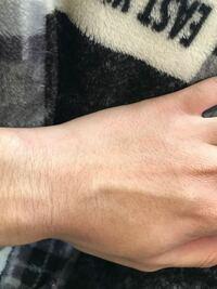 高校生なんですけど腕と手の甲の毛が濃いです。脱毛クリームを使ってみようと思うんですけど手の甲とかの毛穴も消すことができるんでしょうか?とりあえずパイナップルのがいいらしいんで買ってみようと思ってい...