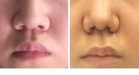 小鼻縮小と鼻尖縮小(内側)しました。  思ってたのと違いショックです。 豚鼻になってしまいました。 今4日目なのですが まだ糸はとってないです。  これは腫れてるからでしょうか? 顔 はかなりむくんで...