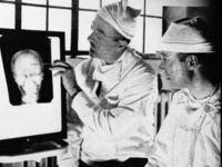 ロボトミー手術ってイかれた手術ですよね? 映画シャッターアイランドを観て思いました。